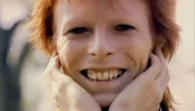 david-bowie-teeth